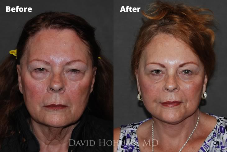 Surgical Facelift and Necklift Yuma, AZ | David Hohuan, MD | Yuma