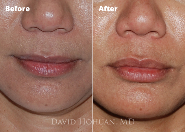 Facial Fillers Expert Yuma, AZ | Frequently Asked Questions Dr