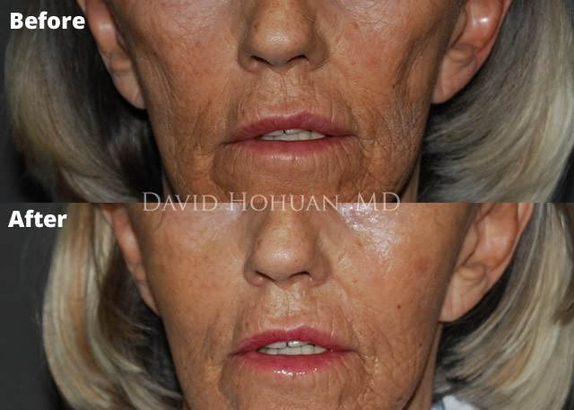 Radiesse Facial Filler Before and After