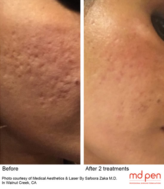 Collagen Induction Therapy Fractional Microneedling Yuma
