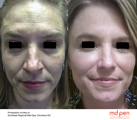 Collagen Induction Therapy Fractional MicroNeedling Yuma, Az  PRP