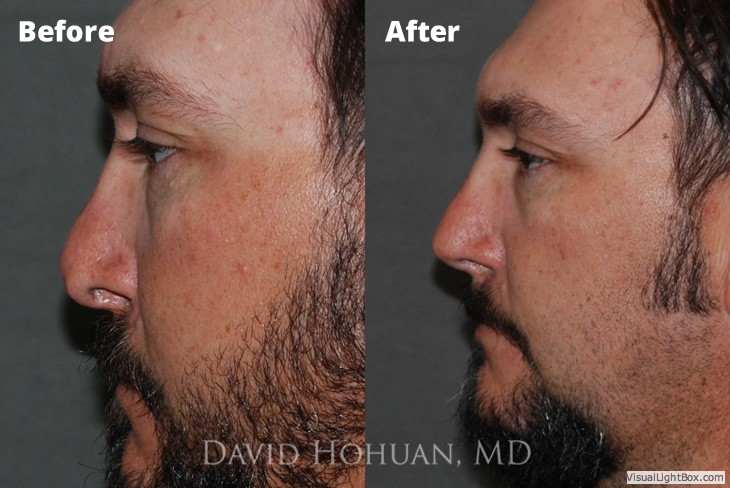 Rhinoplasty Expert Surgeon Yuma, Arizona | Nose Job | David