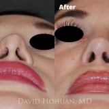 Diagnosis: Previous failed open rhinoplasty, Open Roof Deformity, Collapsed Upper Lateral Cartilage, Tip Deformity, Alar Rim Retraction, External Nasal Valve Collapse                     Procedure: Revision Open Structure Septorhinoplasty, Rib Cartilage Harvest, Deep Temporalis Fascia Harvest                     Techniques: Revision spreader grafts (asymmetric), Left Low-to-High Osteotomy, TIG columella reconstruction, Lateral Crural Strut Grafts, Tip suture-plasty, Temporalis Fascia Apron
