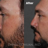Diagnosis: Bilateral Cleft Nasal Deformity, Previous Rhinoplasty with Resultant Major Tip Deformity, Collapsed Tip Cartilage Left Greater Than Right, Severe Tip Asymmetry, Nasal Valve Collapse, Severe Septal Deformity.                     Procedure: Revision Open Septorhinoplasty Using Rib Cartilage                     Techniques: Rib cartilage harvest, Extended spreader grafts, triangular septal extension graft, alar rim grafts, onlay tip graft (cartilage), onlay tip graft (perichondrium), Lateral crural spanning sutures, medial crural fixation sutures.                     Shown: Result at 18 months