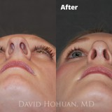 Diagnosis: Severe Nasal Obstruction, Aesthetic Deformity                     Procedure: Open Structure Septorhinoplasty                     Details: Precise Component Hump Reduction, Spreader Grafts, Tip Rhinoplasty using TIG, LCSS, DCS, TPS, and minimal cephalic reduction, crushed cartilage, alar rim grafts.