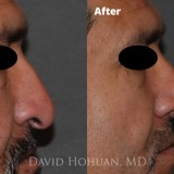 Diagnosis: Severe Nasal Obstruction, Ptosis (Droopy) Nasal Tip                     Procedure: Open Structure Rhinoplasty                     Details: Extended Spreader Grafts, Septal Extension Graft, Tip Suture Technique