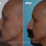 Diagnosis: Low Radix, Dorsal Hump                     Procedure: Endonasal Septorhinoplasty (Closed Rhinoplasty)                     Technique: Minimal Hump Reduction, Endonasal Septoplasty with Cartilage Harvest, Radix-Dorsal Cartilage Graft
